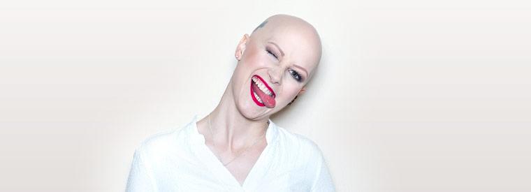 Alopecia Areata Behandlung